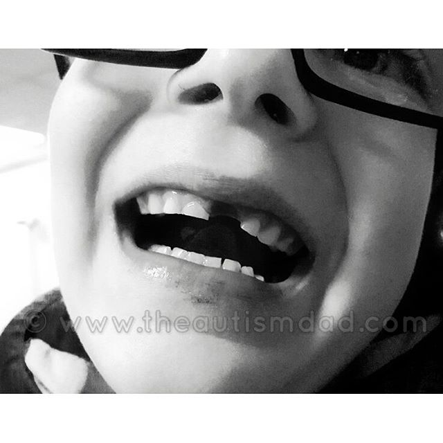 My tiny little Emmett lost his very first tooth today